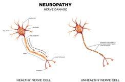 Nerve damage Royalty Free Stock Image