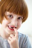 Nettes lächelndes Mädchen, das vordere Zähne verfehlt stockfotografie