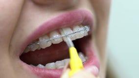 Nettoyage des parenthèses patientes de dents dans la clinique dentaire clips vidéos