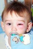 Neugeboren mit rotem Auge Stockbilder