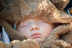 Neugeborenes Baby mit einem Hautausschlag auf seinem Gesicht stockfotografie