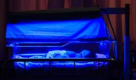 Neugeborenes Baby mit neugeborener Gelbsucht und hohem Bilirubin hyperbili Stockbilder