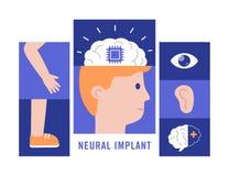 Neural wszczepów płaski wektorowy ilustracyjny medyczny pojęcie obraz royalty free