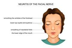 Neuritis of the facial nerve stock illustration