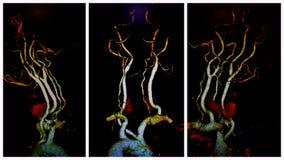 Neuro- ct pathologie de l'examen AIC d'Angio illustration libre de droits