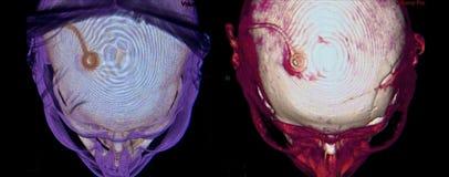 Neurochirurgia, CT Obrazy Stock
