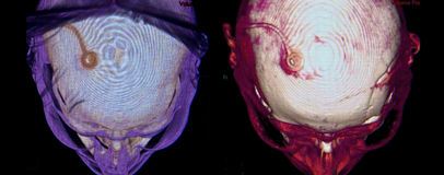 Neurochirurgie, CT Stock Afbeeldingen