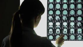 Neurocirurgião que analisa o raio X do cérebro, problemas dos vasos sanguíneos, doença incurável video estoque