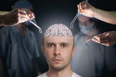 Neurologie en neurochirurgieconcept Chirurgen tijdens verrichting van hersenen stock afbeeldingen