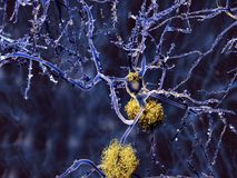 Neuron with amyloid plaques stock photo