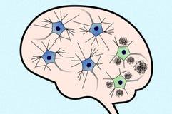 Neuronen in de Ziekte van Alzheimer Stock Afbeeldingen