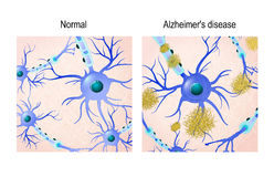 Neurons  background Stock Photos