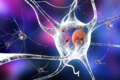 Neurons i Parkinson& x27; s-sjukdom stock illustrationer