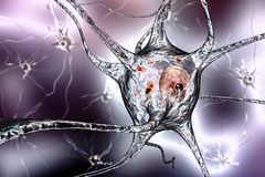 Neurons in Parkinson& x27;s disease Stock Images