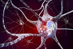 Neurons in Parkinson& x27;s disease Royalty Free Stock Photography