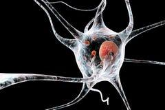 Neurons in Parkinson& x27;s disease Stock Photo
