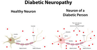 Neuropatía diabética ilustración del vector