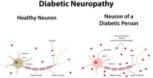 Neuropatia diabetica Fotografia Stock