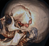 Neurosurgery CT Royaltyfria Foton