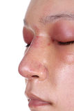 Neus en oog swelll na neusbaan stock afbeelding