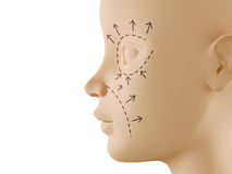 Neutral face profile with aesthetic surgery sign Stock Photos