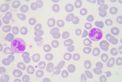 Neutrophils are a type of phagocyte and are normally found in th Royalty Free Stock Photos