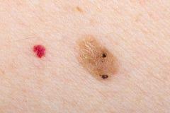 Nevus and cherry angioma on human skin. Close up photo of nevus and cherry angioma on human skin Stock Photo