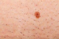 Nevus på en rakad mänsklig hud royaltyfri foto