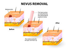 Nevus Removal royalty free illustration