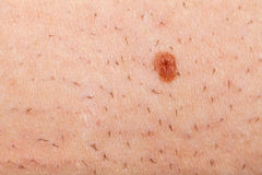 Nevus on a shaved human skin Royalty Free Stock Photo