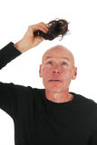 New hair for bald man Stock Photography