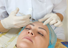 New technologies in the medical cosmetology stock photos