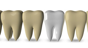 New tooth and old ones Royalty Free Stock Photography