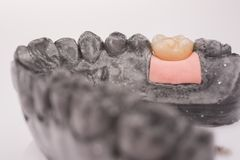 New white ceramic tooth with dentures on a light background Stock Photo