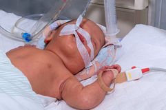 Newborn baby with hyperbilirubinemia on breathing machine with pulse oximeter sensor in neonatal intensive care unit at children`s. Newborn baby with Royalty Free Stock Photo
