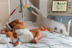 Newborn baby with hyperbilirubinemia on breathing machine with pulse oximeter sensor and peripheral intravenous catheter in neonat. Newborn baby with stock photo