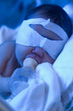 Newborn baby under ultraviolet light Stock Photo