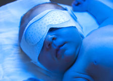 Newborn jaundice treatment. Newborn baby sleeping under blue lamp in incubator because of neonatal jaundice. Neonatal jaundice treatment Royalty Free Stock Photos