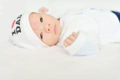 Newborn with red bloddshot eye Royalty Free Stock Photo