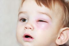Newborn with red eye. Little boy - dangerous stings from wasps near the eye stock photos