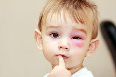 Newborn with red eye. Little boy - dangerous stings from wasps near the eye royalty free stock images