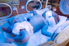 Newborn under blue lamp. Newborn baby sleeping under blue lamp in incubator because of neonatal jaundice. Neonatal jaundice treatment Stock Photos