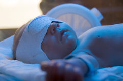 Newborn under blue lamp Stock Photos
