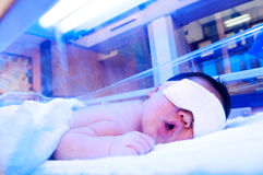 Newborn Under Ultraviolet Light Stock Photo