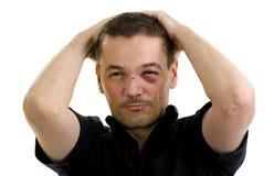 Nez cassé et courbé et noir, yeux croisés photo libre de droits