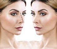 Nez femelle avant et après la chirurgie esthétique photo libre de droits