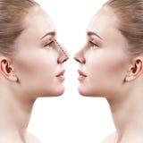Nez femelle avant et après la chirurgie esthétique Photos stock