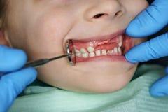 Niña en el dentista en el examen imágenes de archivo libres de regalías