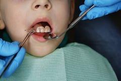 Niña en el dentista en el examen foto de archivo libre de regalías