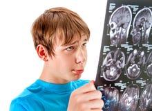 Niño con la radiografía Foto de archivo libre de regalías